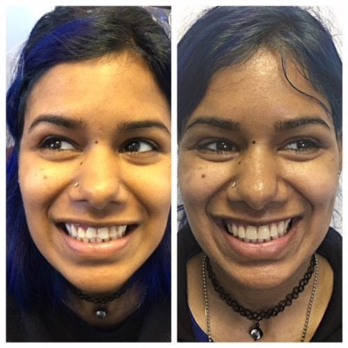 Before Dentist And After Dental Care