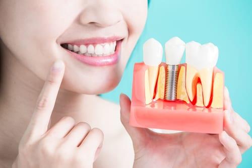 Dental Implants at dentistbrooklyn.com