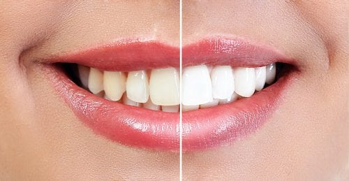 Teeth Whitening Before And After Comparison